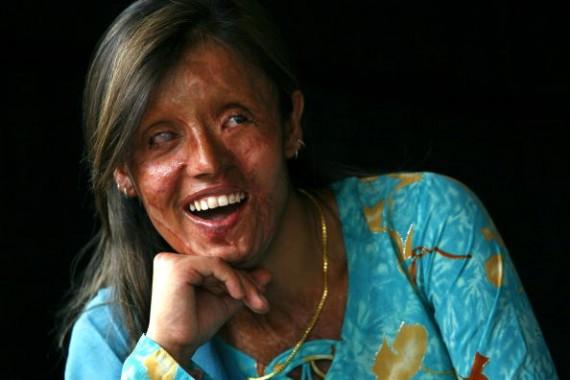 Saira Liaqat, a victim of acid violence